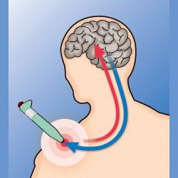 Ручка для снятия боли